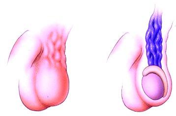 erekció varicocele után