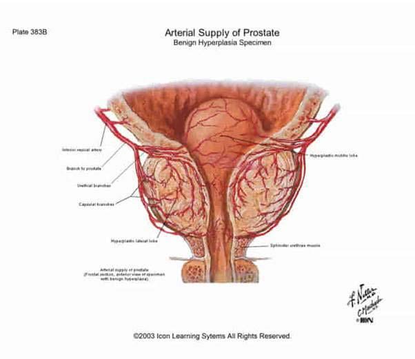 a prosztatagyulladás és az erekció kezelése)