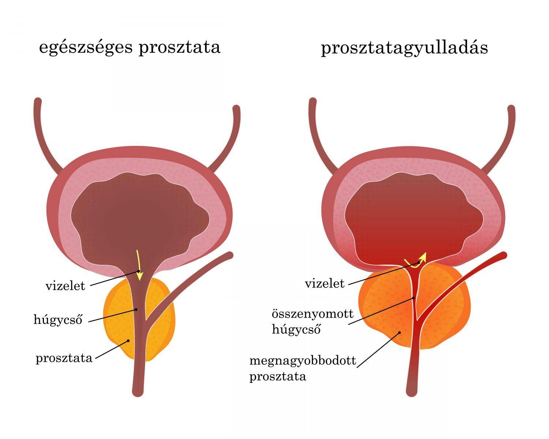 krónikus prosztatagyulladással járó erekció jó