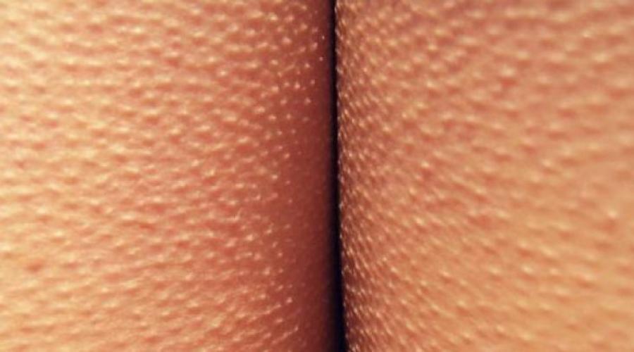 A pénisz foltjai - Forral -