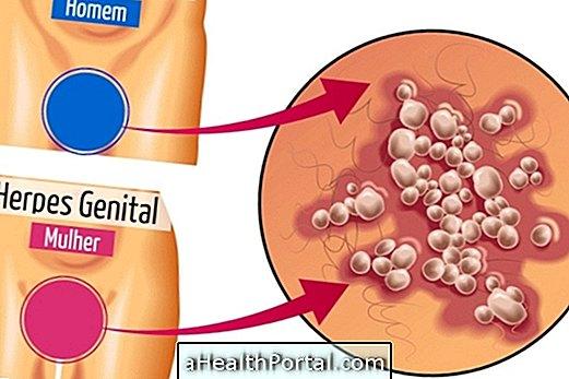 hogyan kell kezelni a herpeszt a péniszen)