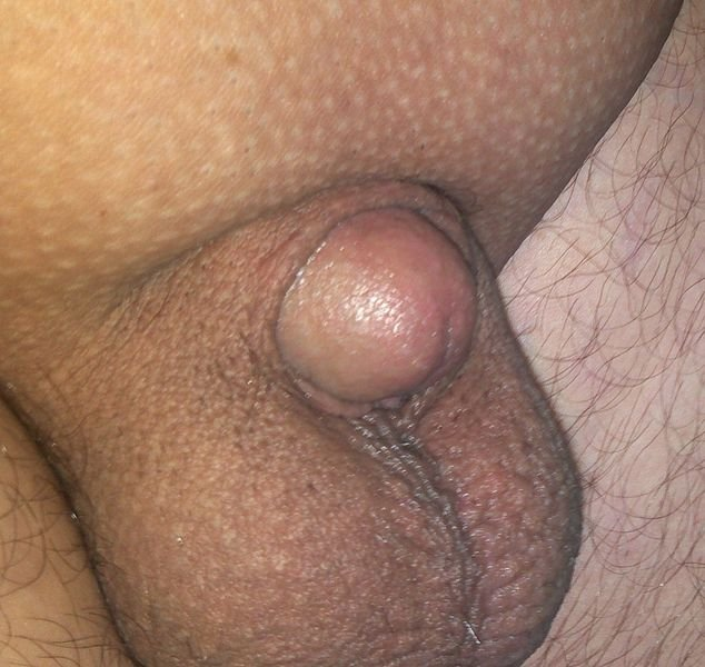 egy srácnak kicsi a pénisz