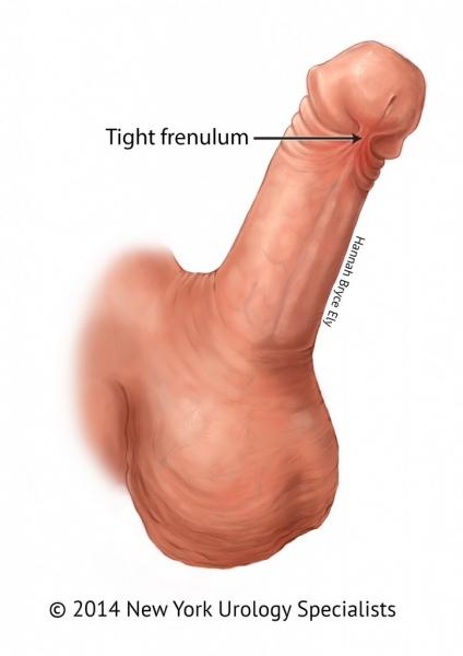 frenulotomia pénisz)