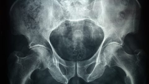 pénisz és idegen test hogyan lehet lelassítani a férfi erekcióját