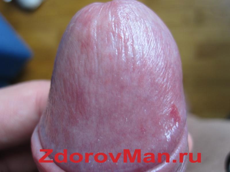 a pénisz kérges