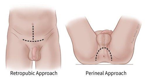 a prosztata kijön a péniszből