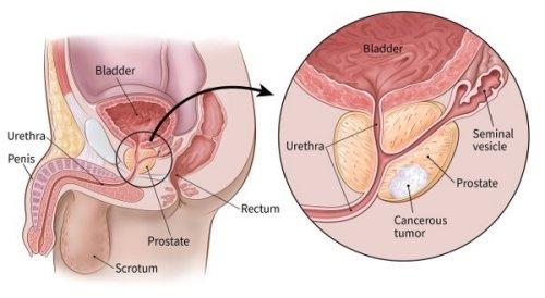 vastagbél erekciója