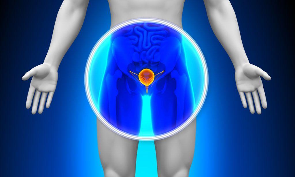 prosztatagyulladás esetén problémák merülhetnek fel az erekcióval