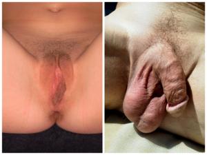 mi a pénisz a férfiaknál