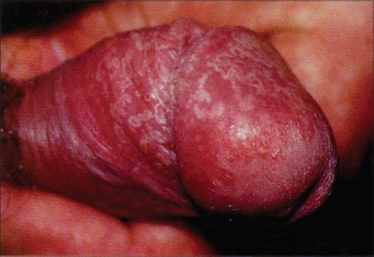 streptococcus penis