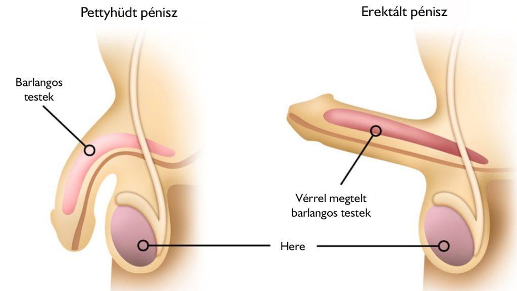 a pénisz hajlik egy erekció során