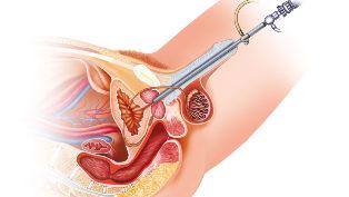 a prosztata adenoma esetén lehetséges erekció