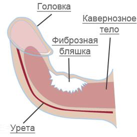 a pénisz görbülete kezelni