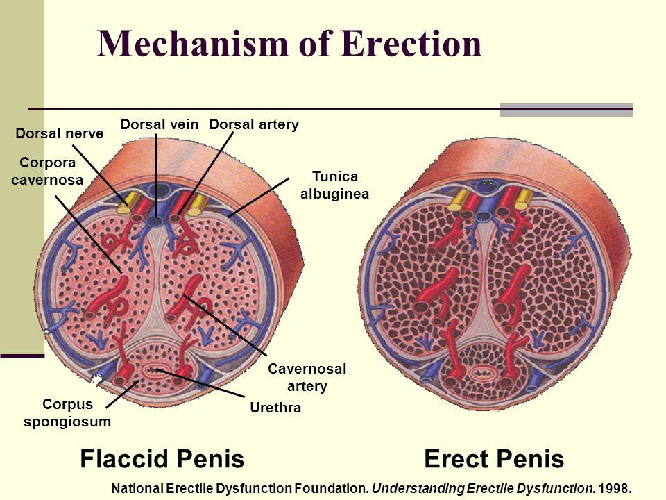 erekció sz