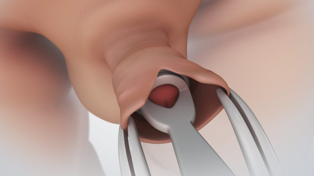 a pénisz nagyon érzékeny