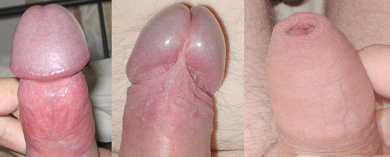 hogyan kell visszahúzni a péniszét