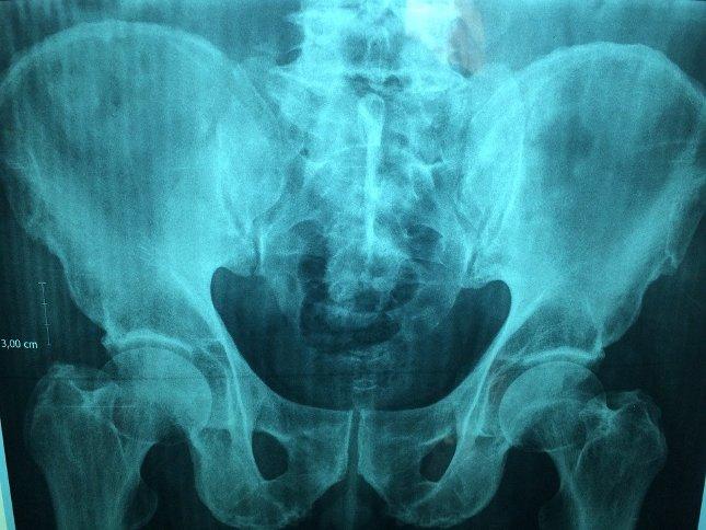 pénisz és idegen test milyen gyakorlatok segítenek az erekcióban