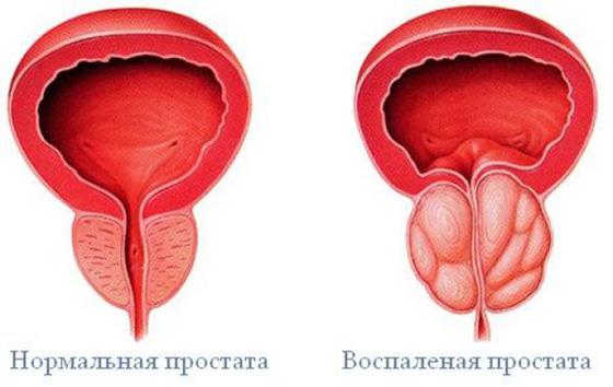 Gyakorlat a pénisznövelő véleményekért az erekció a cselekmény előtt eltűnik