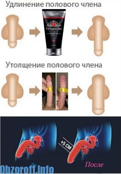 A pénisz rövid kantárja valóban – szükséges?