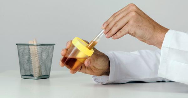 Fertőzés, vesekő vagy prosztataprobléma: mit jelez a véres vizelet?