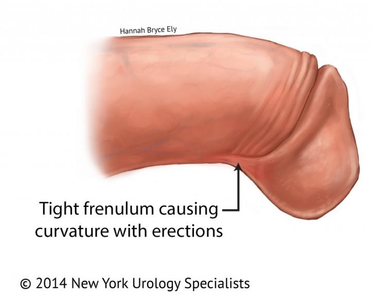Frenulotomia (fitymafék) műtét