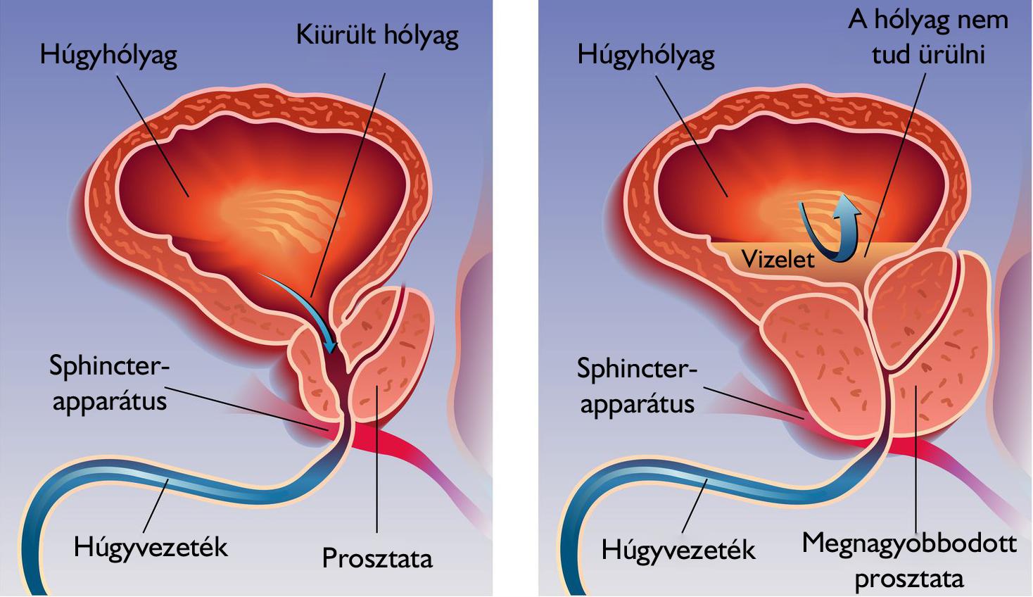 erekció után a prosztata fájdalma