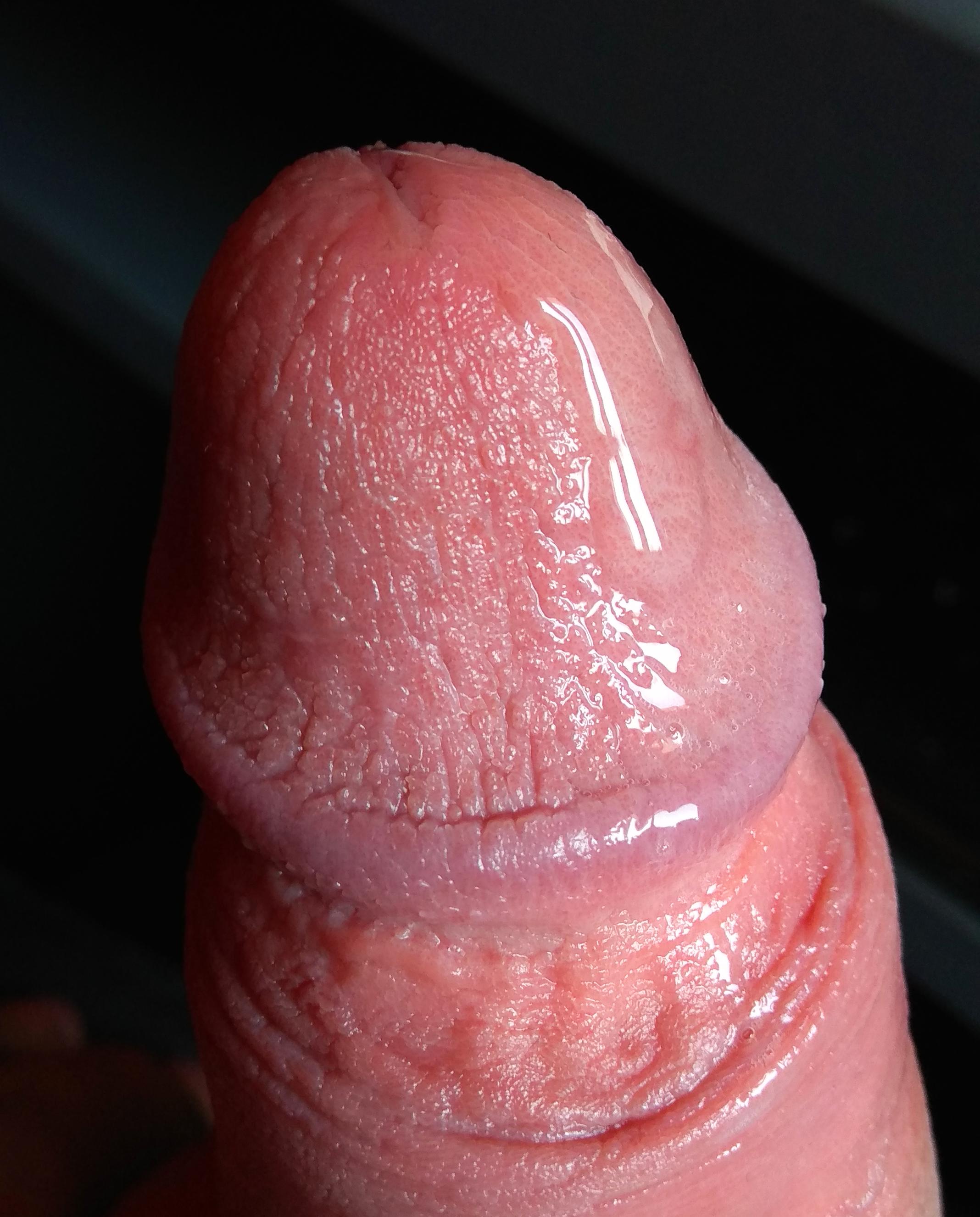 fiú pénisz erekciója)