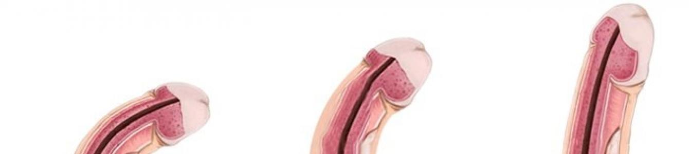 a pénisz felálló állapotban meghajlik