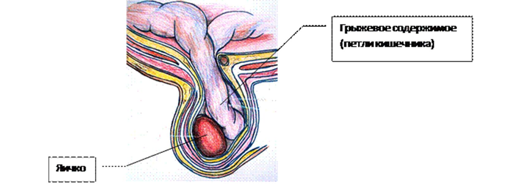 hogyan lehet erekciót emelni népi gyógymódokkal