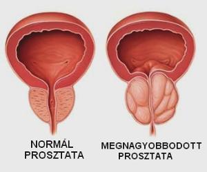 Prosztatagyulladás tünetei és erekció