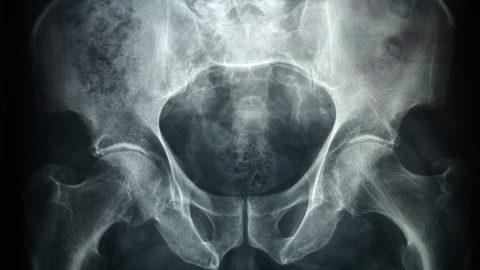 pénisz és idegen test