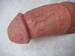 erekció során a pénisz fáj)