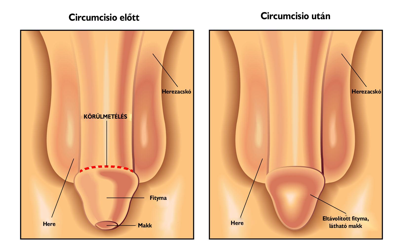 műtét után pénisz