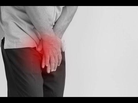 prosztatagyulladás és gyenge erekció